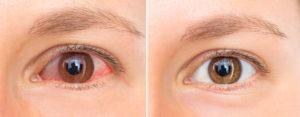 Pink Eye vs. Healthy Eye