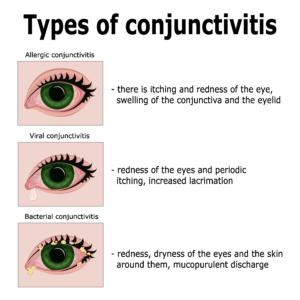 types of pink eye (conjunctivitis)